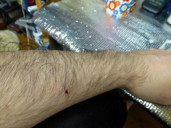 目薬を嫌がって暴れるレオに腕を爪でぐさりと刺されるの図